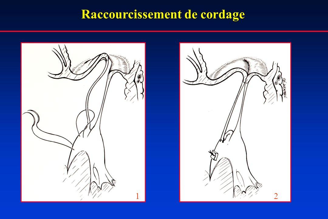 Raccourcissement de cordage 12
