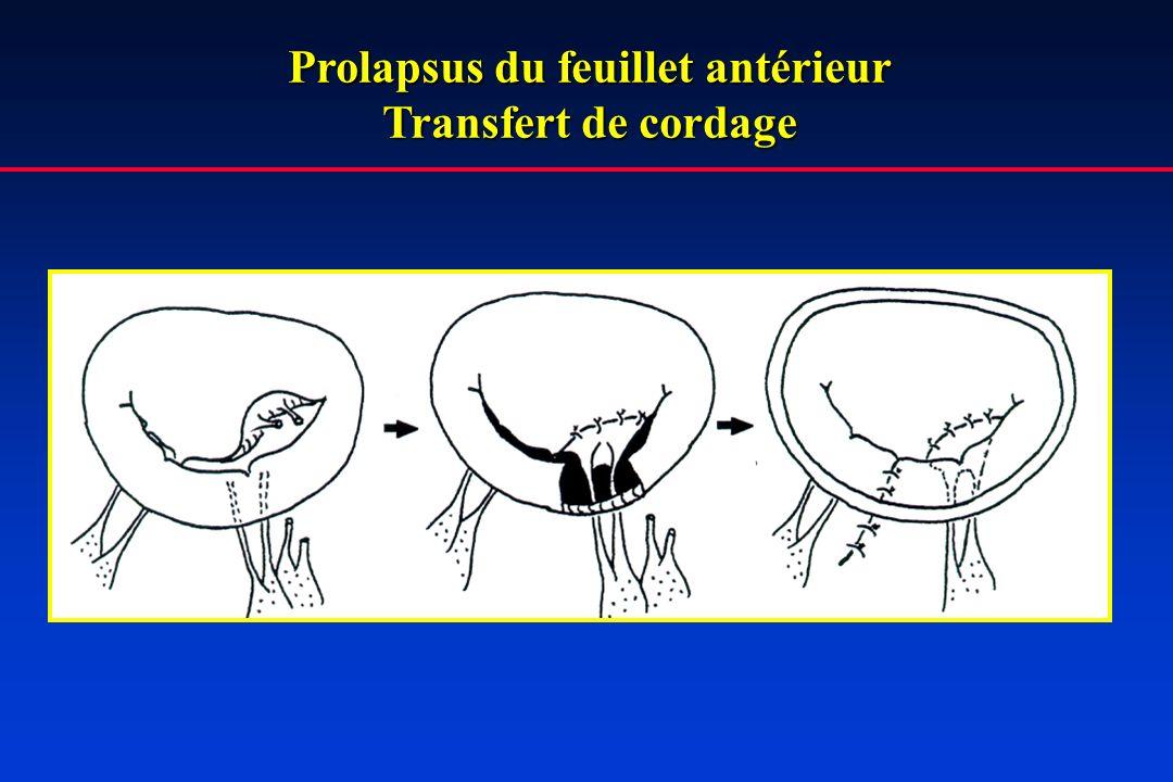 Prolapsus du feuillet antérieur Transfert de cordage
