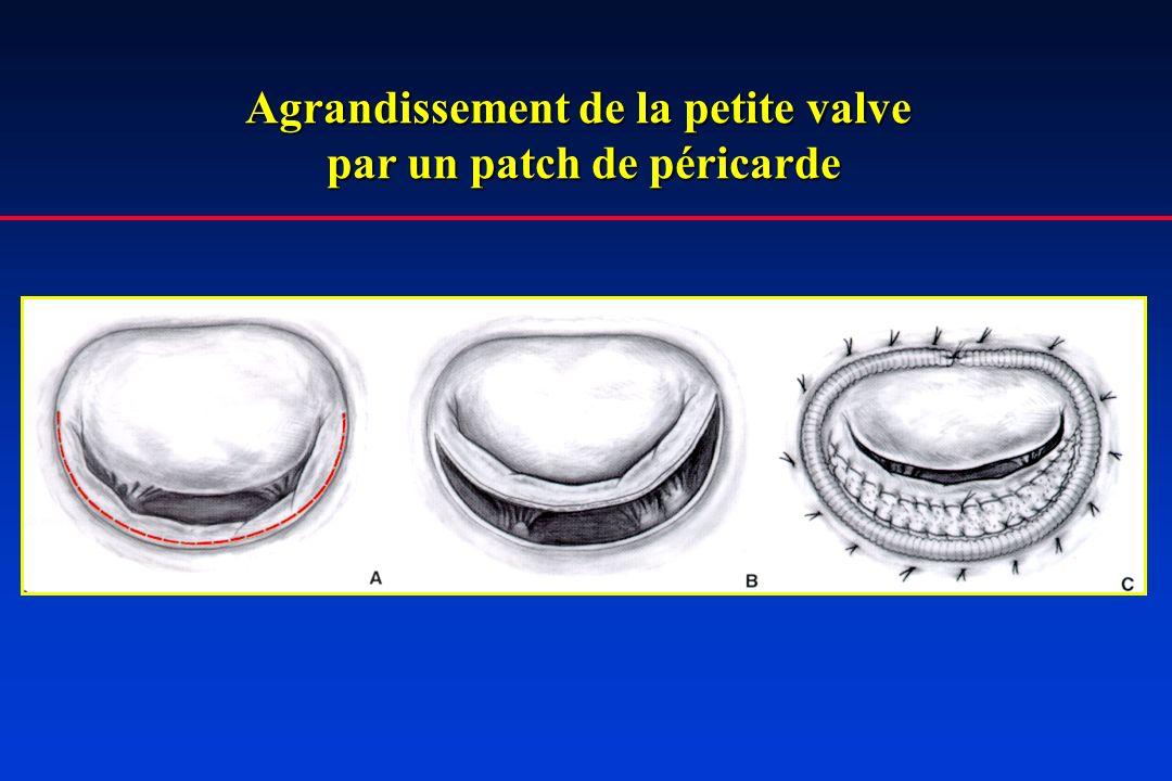 Agrandissement de la petite valve par un patch de péricarde par un patch de péricarde