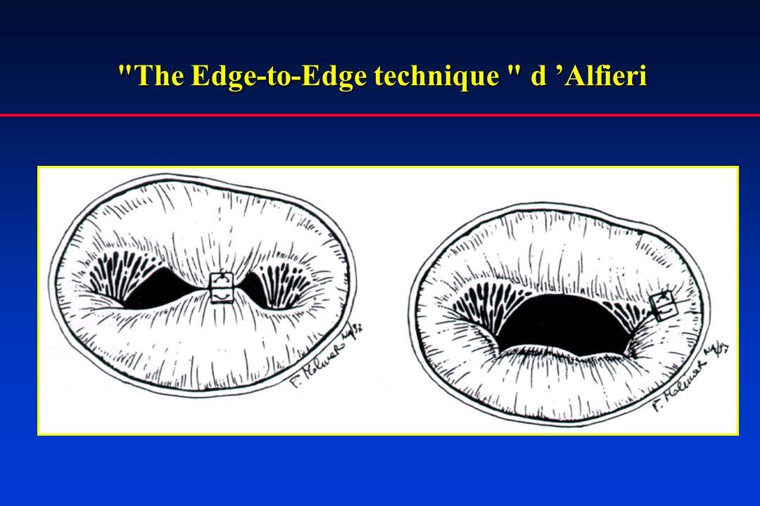 The Edge-to-Edge technique d Alfieri