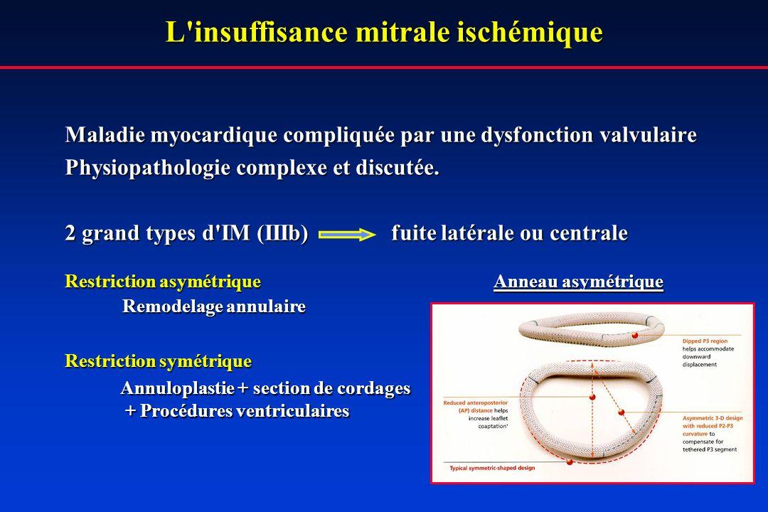 L'insuffisance mitrale ischémique Maladie myocardique compliquée par une dysfonction valvulaire Physiopathologie complexe et discutée. 2 grand types d