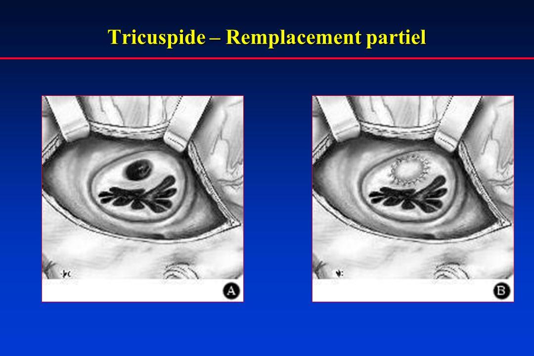 Tricuspide – Remplacement partiel