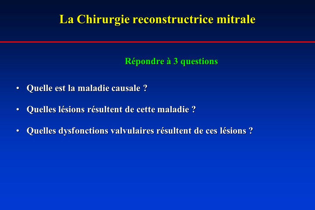 La Chirurgie reconstructrice mitrale Répondre à 3 questions Quelle est la maladie causale ?Quelle est la maladie causale ? Quelles lésions résultent d