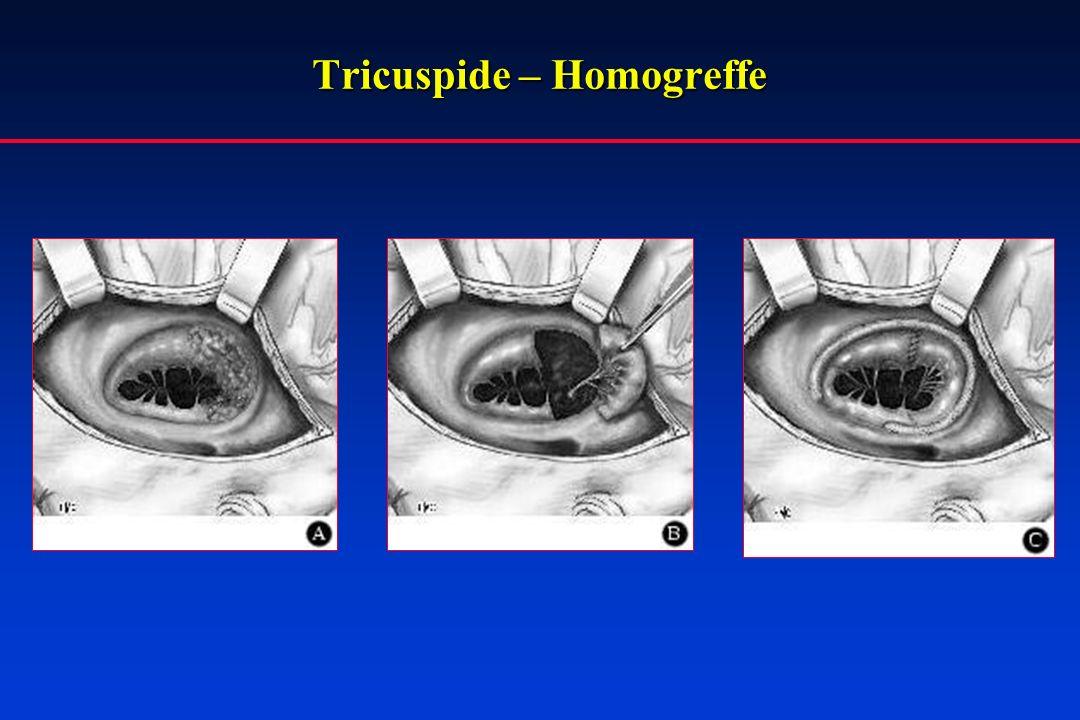 Tricuspide – Homogreffe