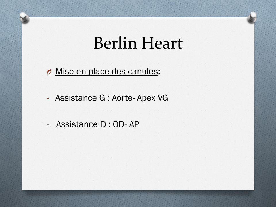 Berlin Heart O Mise en place des canules: - Assistance G : Aorte- Apex VG - Assistance D : OD- AP