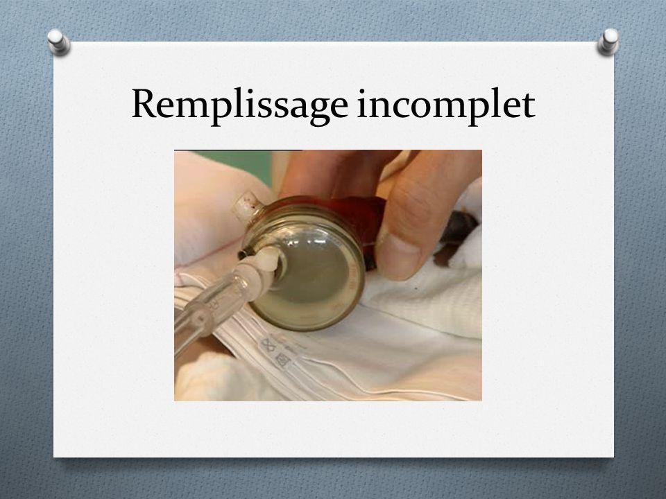 Remplissage incomplet