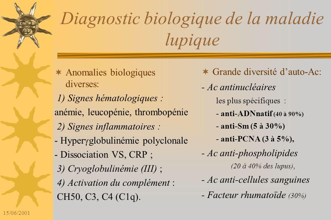 15/06/2001 Diagnostic biologique de la maladie lupique Anomalies biologiques diverses: 1) Signes hématologiques : anémie, leucopénie, thrombopénie 2) Signes inflammatoires : - Hyper globulinémie polyclonale - Dissociation VS, CRP ; 3) Cryoglobulinémie (III) ; 4) Activation du complément : CH50, C3, C4 (C1q).