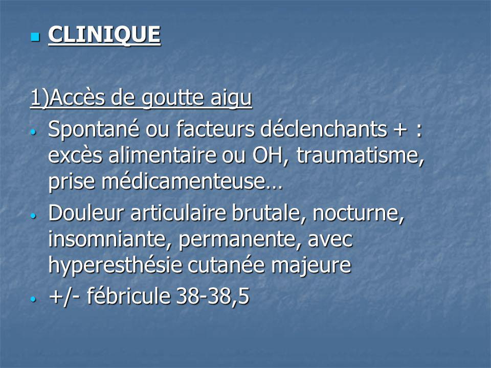 Touche métatarso-phalangienne du gros orteil +++ Touche métatarso-phalangienne du gros orteil +++ (moins fréquent : cheville, genou, coude,poignet…) (moins fréquent : cheville, genou, coude,poignet…) Aspect rouge, chaud, oedématié, épanchement articulaire… Aspect rouge, chaud, oedématié, épanchement articulaire… Biologie : syndrome inflammatoire, hyperuricémie Biologie : syndrome inflammatoire, hyperuricémie Ponction articulaire : liquide inflammatoire + cristaux durates +++ Ponction articulaire : liquide inflammatoire + cristaux durates +++
