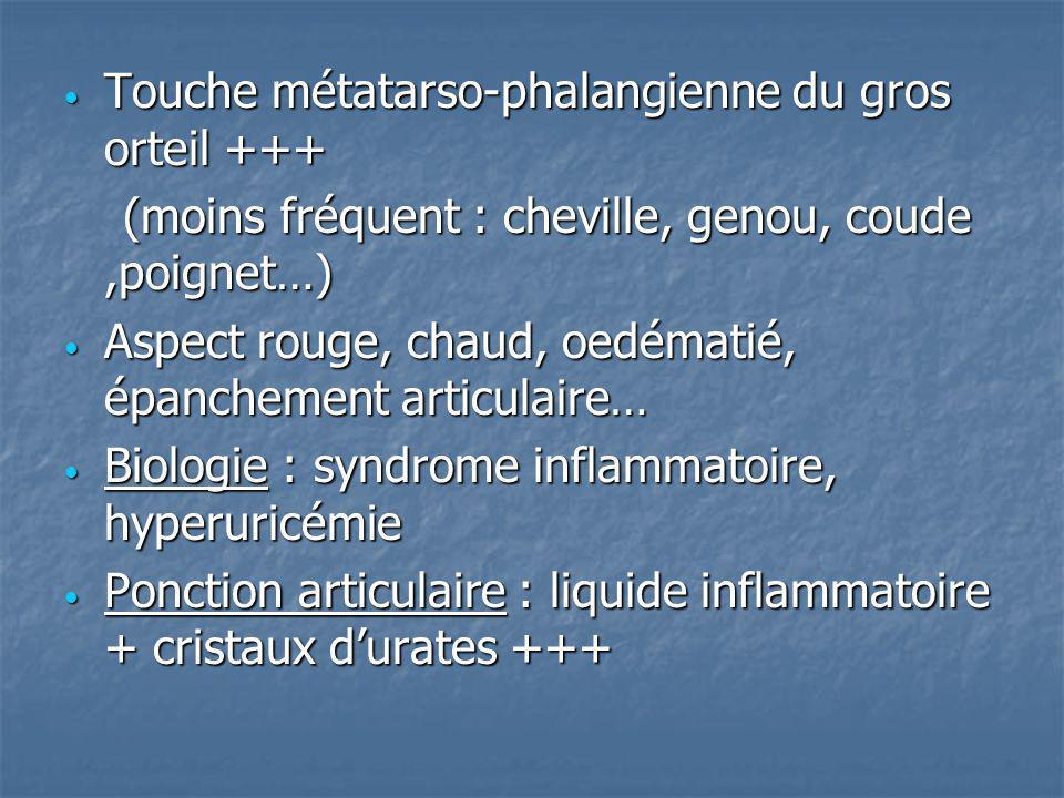 Touche métatarso-phalangienne du gros orteil +++ Touche métatarso-phalangienne du gros orteil +++ (moins fréquent : cheville, genou, coude,poignet…) (
