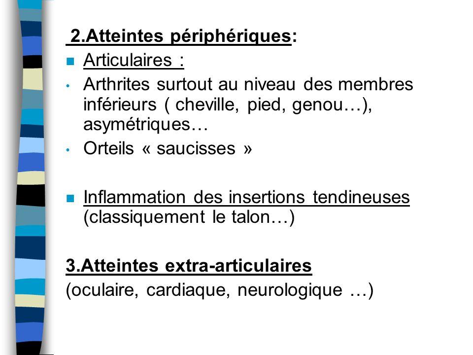2.Atteintes périphériques: n Articulaires : Arthrites surtout au niveau des membres inférieurs ( cheville, pied, genou…), asymétriques… Orteils « sauc