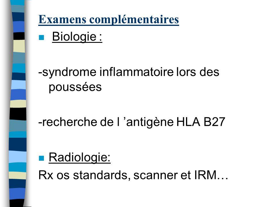 Examens complémentaires n Biologie : -syndrome inflammatoire lors des poussées -recherche de l antigène HLA B27 n Radiologie: Rx os standards, scanner