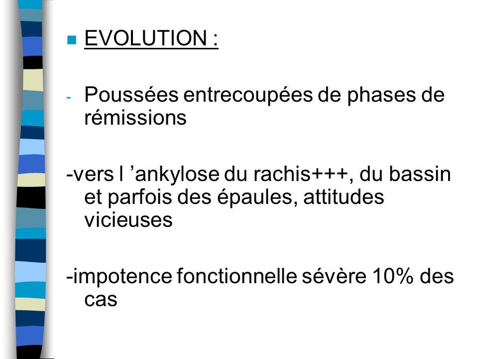 n EVOLUTION : - Poussées entrecoupées de phases de rémissions -vers l ankylose du rachis+++, du bassin et parfois des épaules, attitudes vicieuses -im