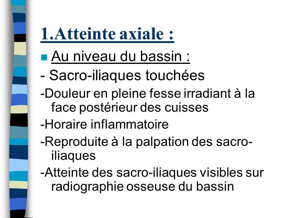 1.Atteinte axiale : n Au niveau du bassin : - Sacro-iliaques touchées -Douleur en pleine fesse irradiant à la face postérieur des cuisses -Horaire inf