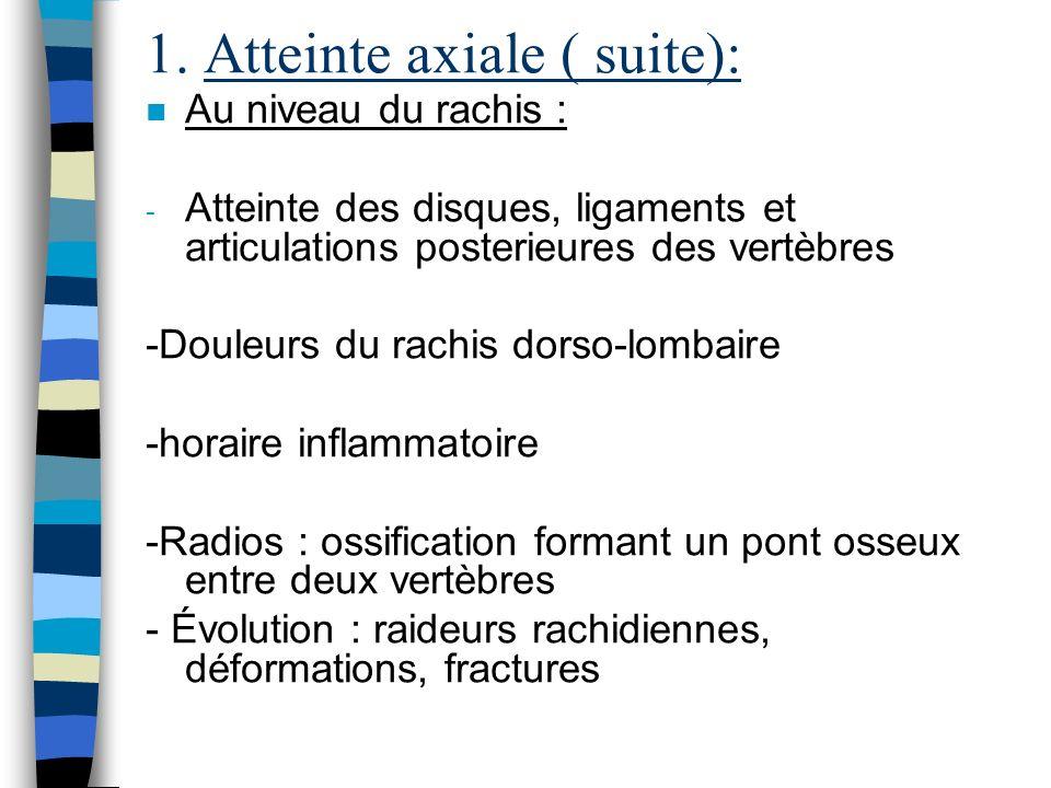 1. Atteinte axiale ( suite): n Au niveau du rachis : - Atteinte des disques, ligaments et articulations posterieures des vertèbres -Douleurs du rachis