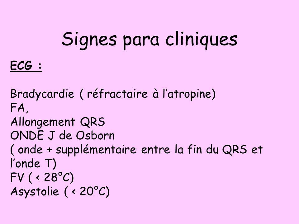Signes para cliniques ECG : Bradycardie ( réfractaire à latropine) FA, Allongement QRS ONDE J de Osborn ( onde + supplémentaire entre la fin du QRS et