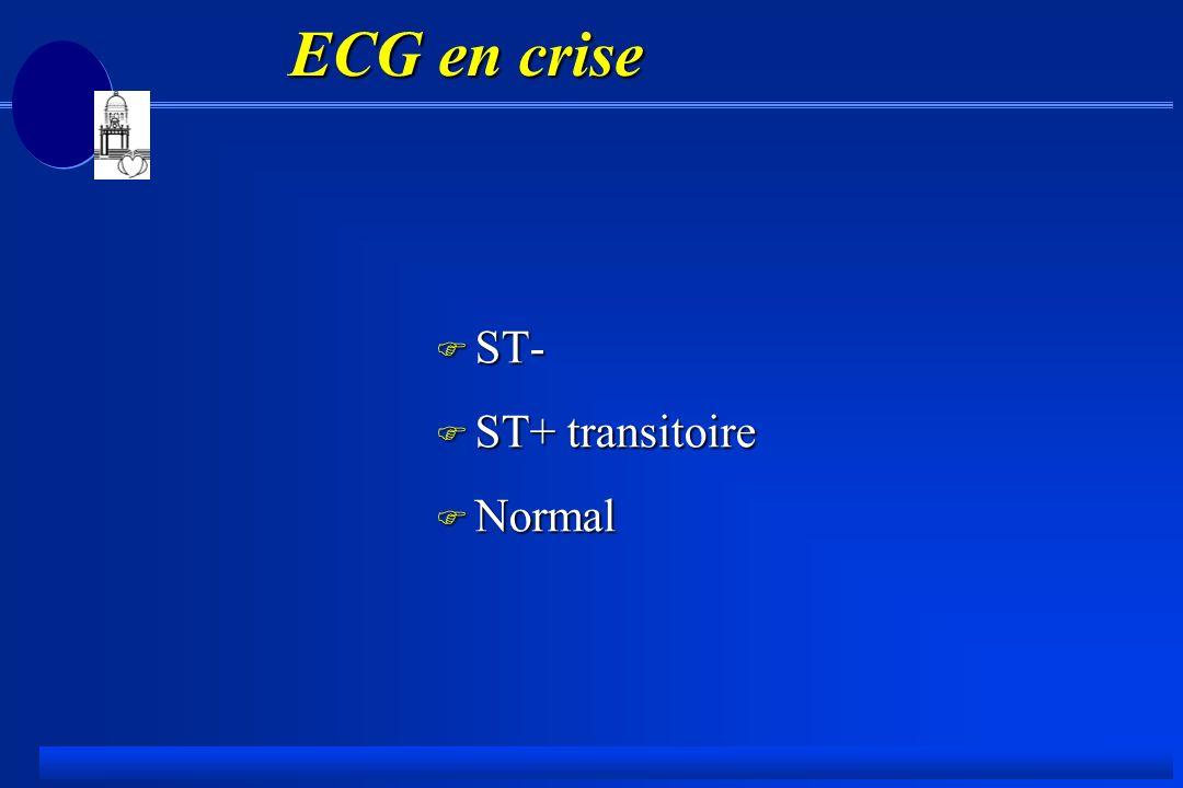 ECG en crise ECG en crise F ST- F ST+ transitoire F Normal
