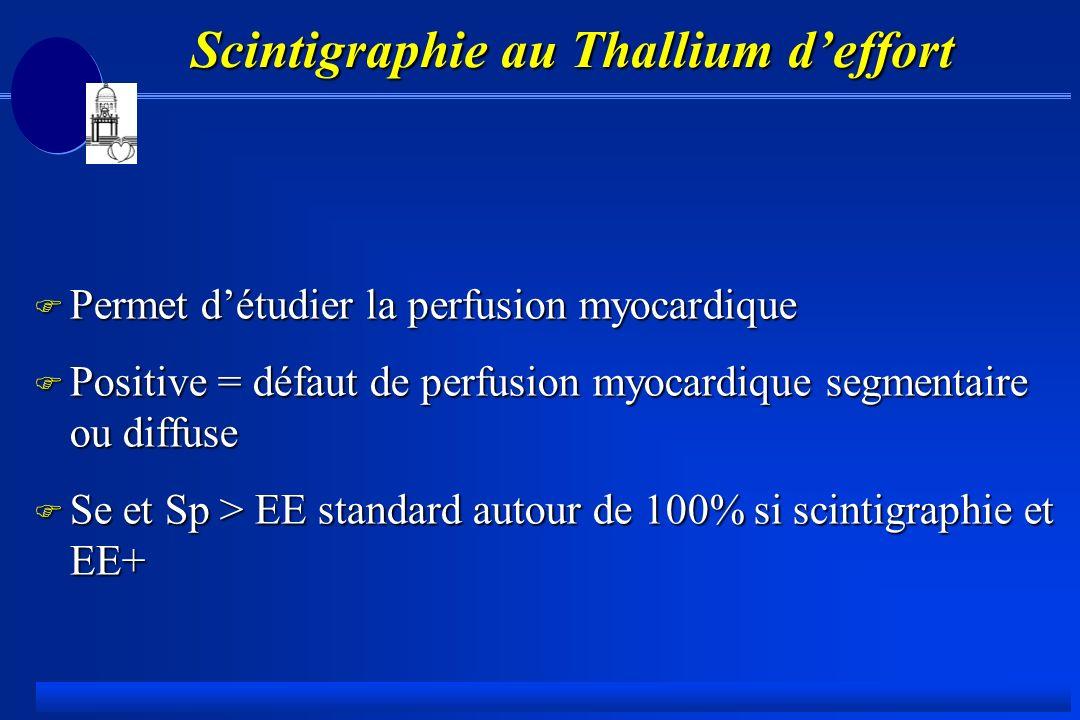 Scintigraphie au Thallium deffort F Permet détudier la perfusion myocardique F Positive = défaut de perfusion myocardique segmentaire ou diffuse F Se et Sp > EE standard autour de 100% si scintigraphie et EE+
