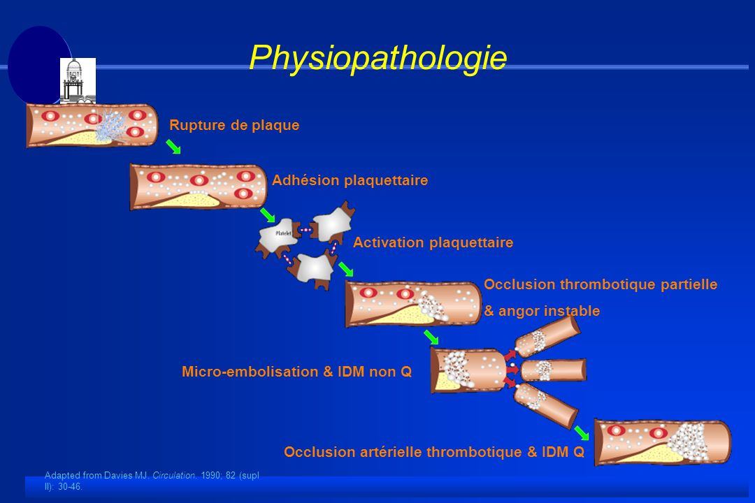 Rupture de plaque Adhésion plaquettaire Activation plaquettaire Occlusion thrombotique partielle & angor instable Micro-embolisation & IDM non Q Occlusion artérielle thrombotique & IDM Q Physiopathologie Adapted from Davies MJ.