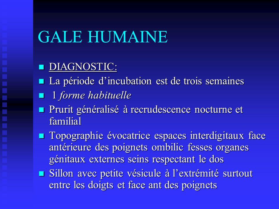 GALE HUMAINE DIAGNOSTIC: DIAGNOSTIC: La période dincubation est de trois semaines La période dincubation est de trois semaines 1 forme habituelle 1 fo