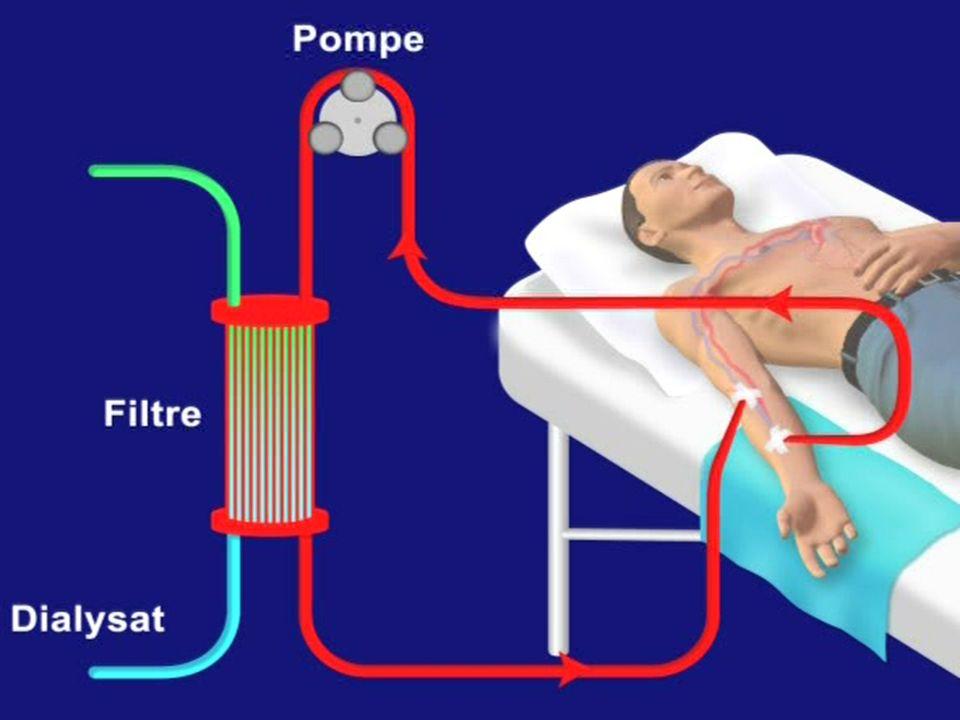 Le matériel dhémodialyse - Le dialyseur : support de la membrane. - Le générateur : cest la machine… - Circuit sanguin extra-corporel : tubulures. - E