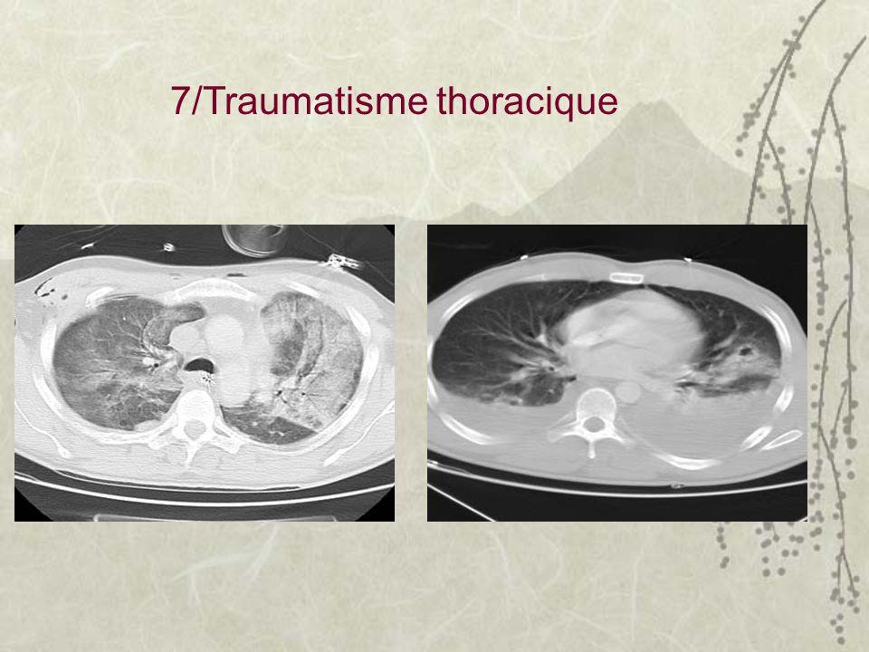 7/Traumatisme thoracique