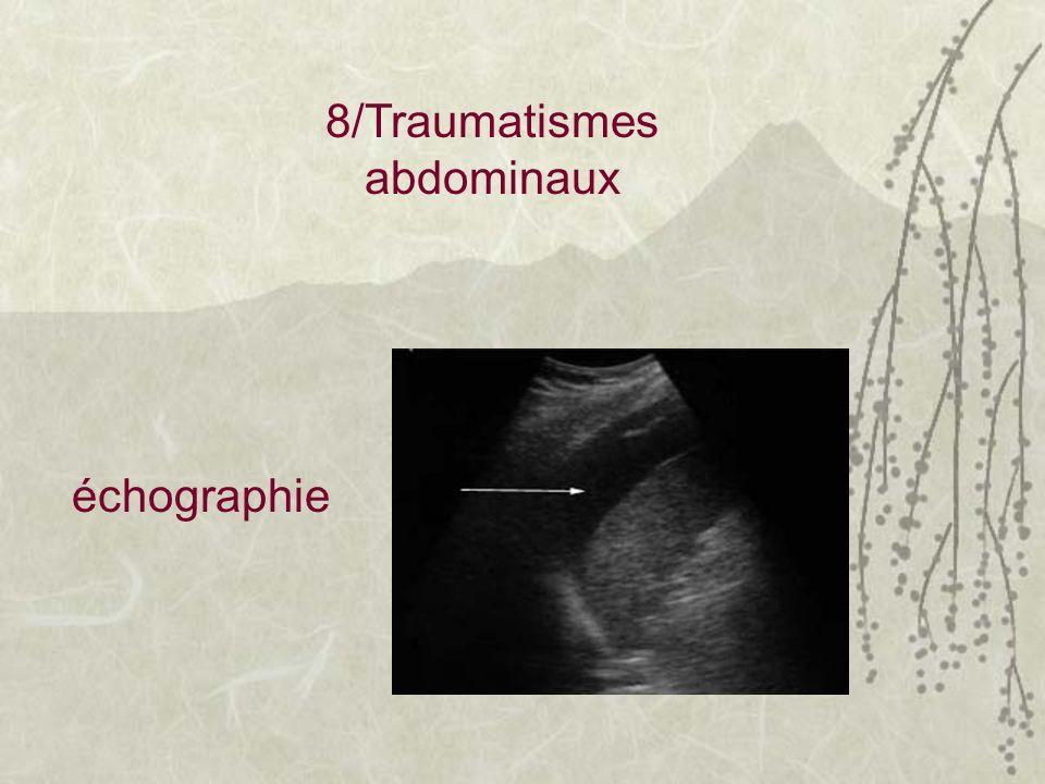 8/Traumatismes abdominaux échographie