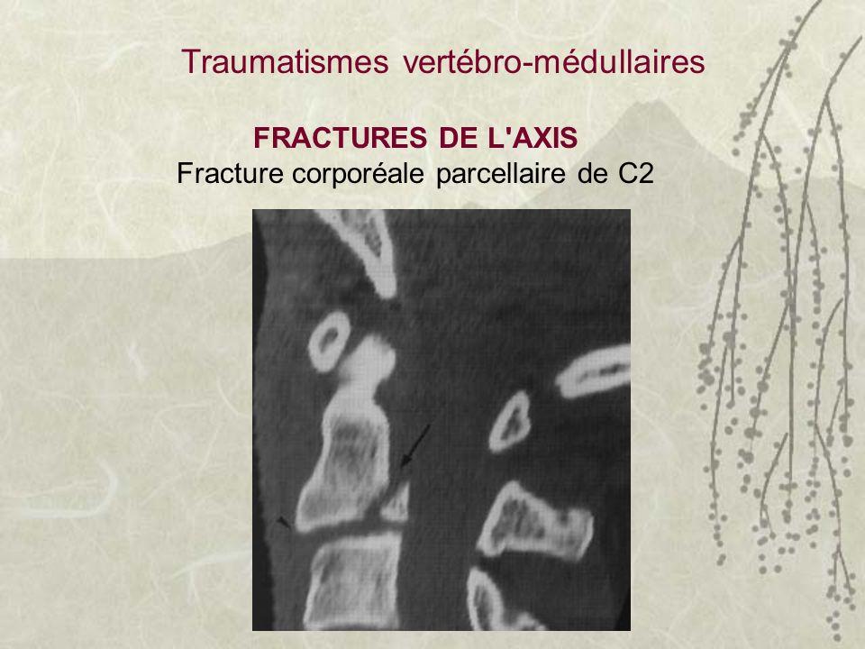 FRACTURES DE L'AXIS Fracture corporéale parcellaire de C2 Traumatismes vertébro-médullaires