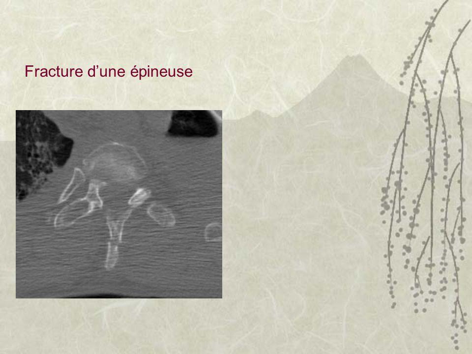 Fracture dune épineuse