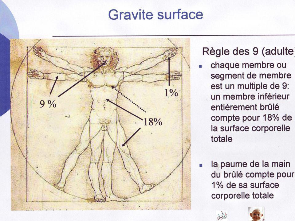 Brûlures : gravité surface