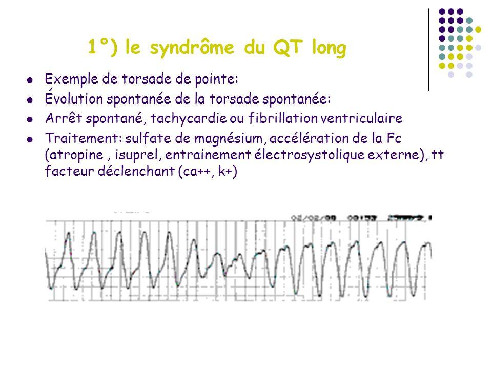 1°) le syndrôme du QT long Exemple de torsade de pointe: Évolution spontanée de la torsade spontanée: Arrêt spontané, tachycardie ou fibrillation vent