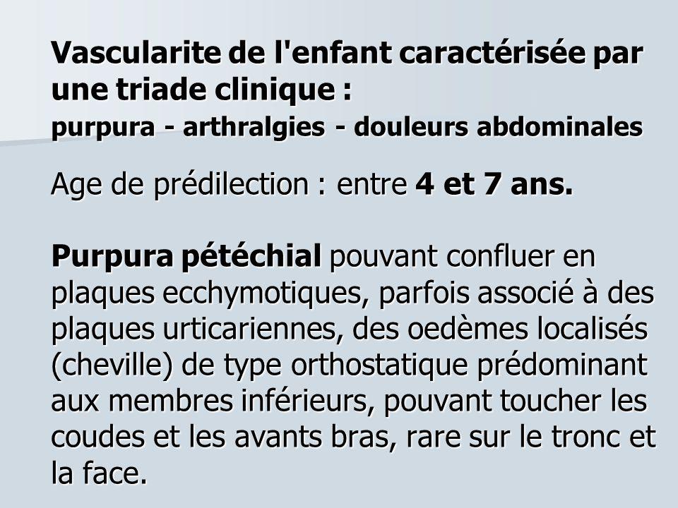 Vascularite de l'enfant caractérisée par une triade clinique : purpura - arthralgies - douleurs abdominales Age de prédilection : entre 4 et 7 ans. Pu