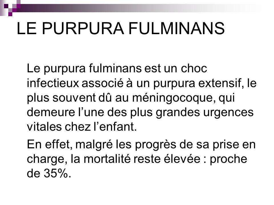 LE PURPURA FULMINANS Le purpura fulminans est un choc infectieux associé à un purpura extensif, le plus souvent dû au méningocoque, qui demeure lune d