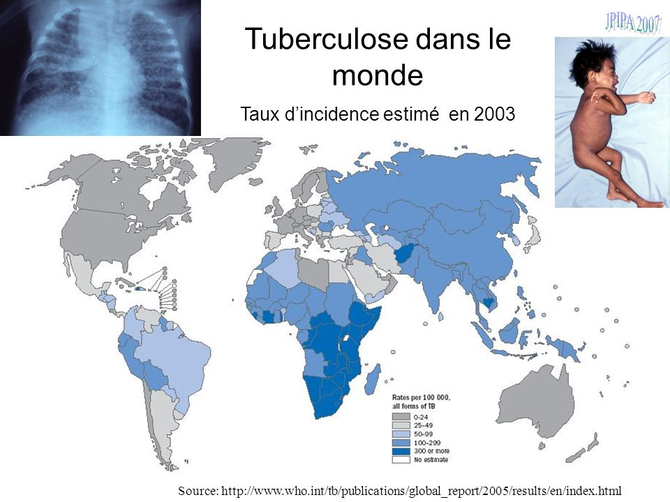 100 Tuberculose dans le monde Taux dincidence estimé en 2003 Source: http://www.who.int/tb/publications/global_report/2005/results/en/index.html