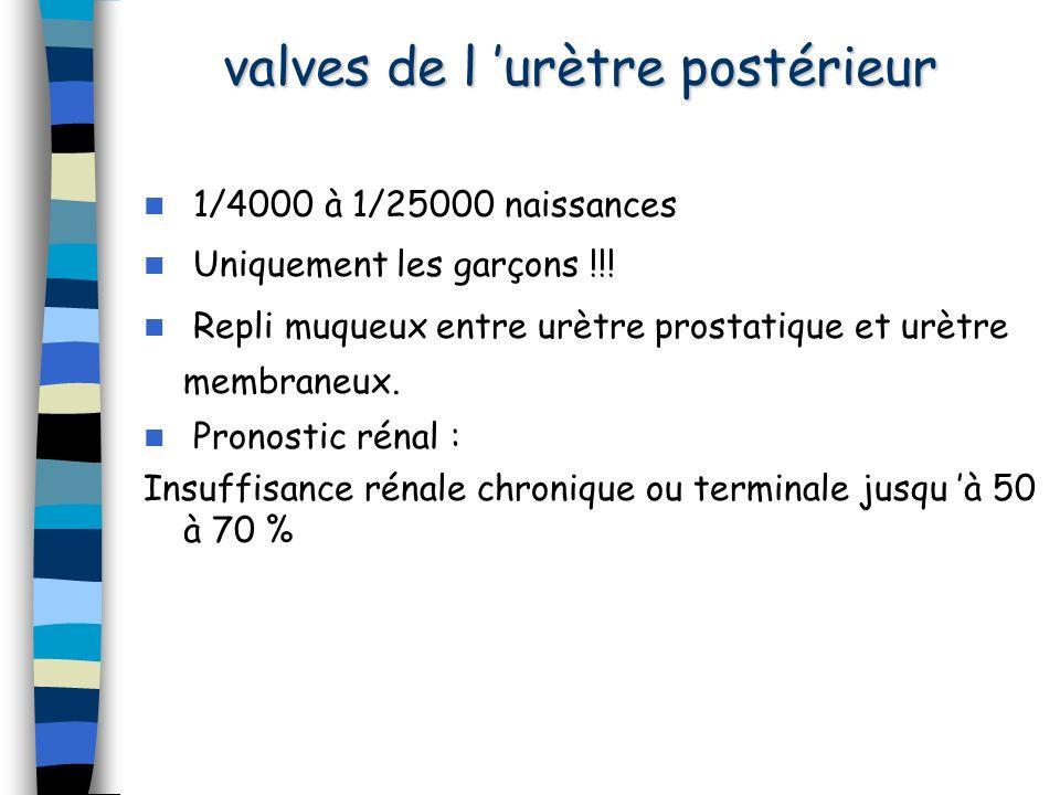 valves de l urètre postérieur 1/4000 à 1/25000 naissances Uniquement les garçons !!! Repli muqueux entre urètre prostatique et urètre membraneux. Pron