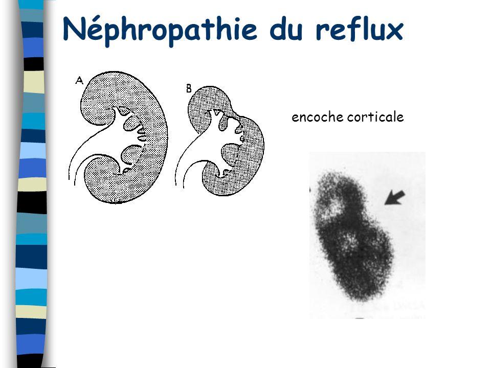 Néphropathie du reflux encoche corticale