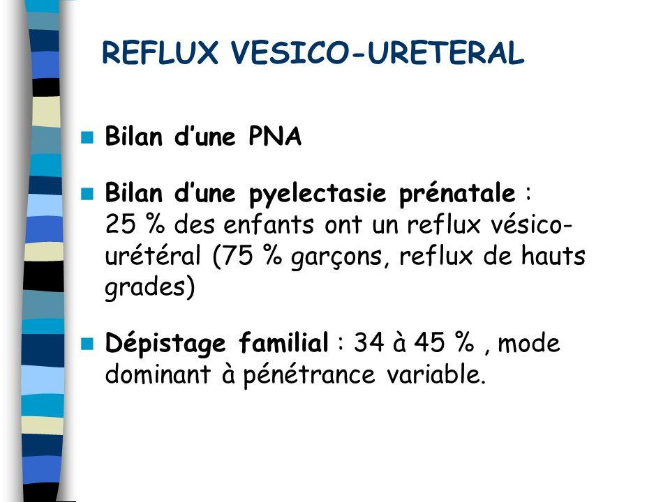 REFLUX VESICO-URETERAL Bilan dune PNA Bilan dune pyelectasie prénatale : 25 % des enfants ont un reflux vésico- urétéral (75 % garçons, reflux de haut