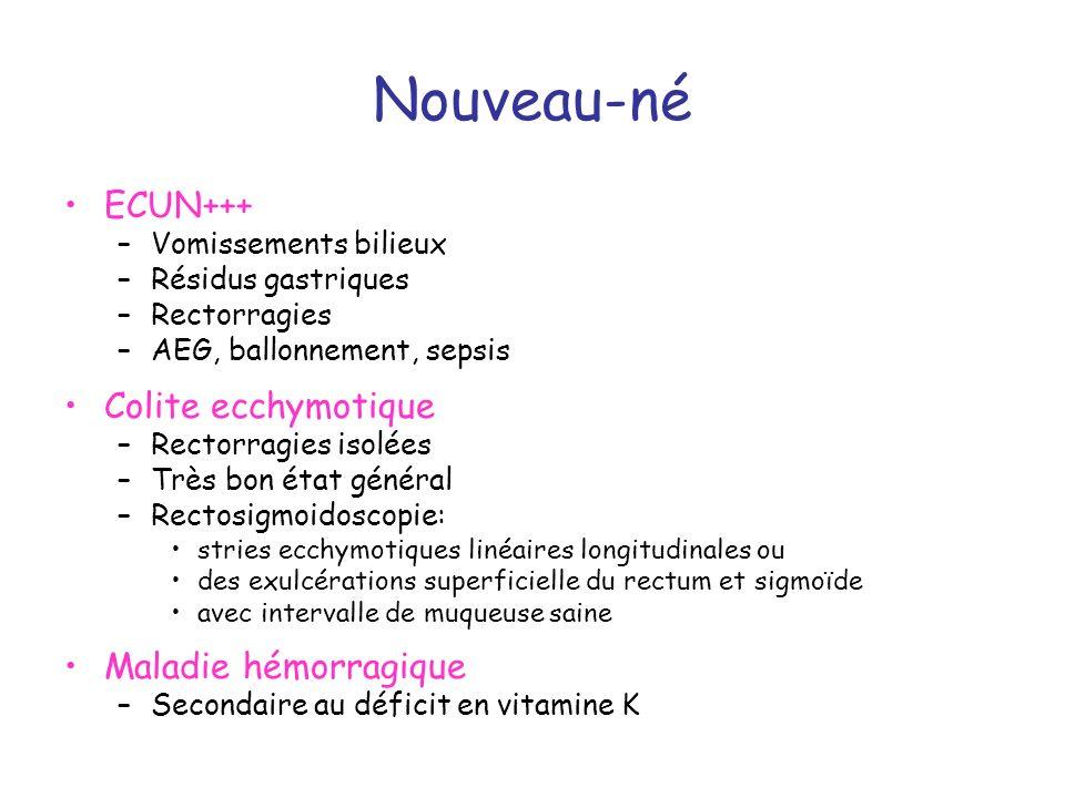 Nouveau-né ECUN+++ –Vomissements bilieux –Résidus gastriques –Rectorragies –AEG, ballonnement, sepsis Colite ecchymotique –Rectorragies isolées –Très