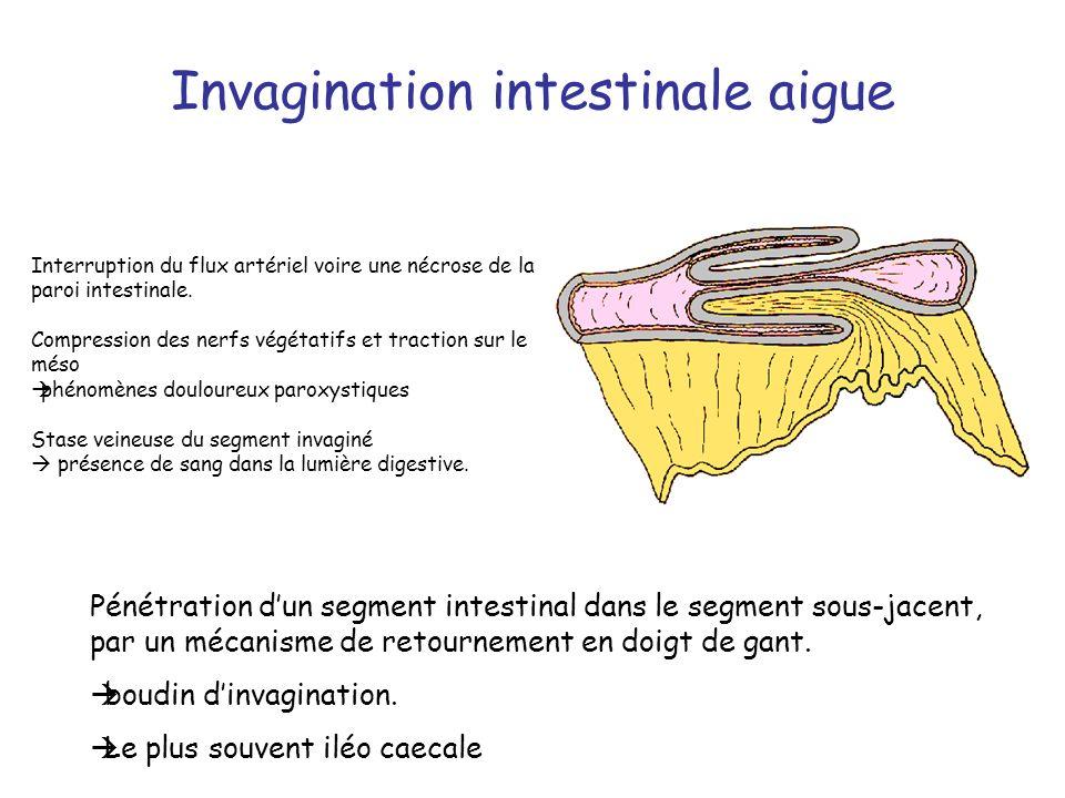 Invagination intestinale aigue Pénétration dun segment intestinal dans le segment sous-jacent, par un mécanisme de retournement en doigt de gant. boud