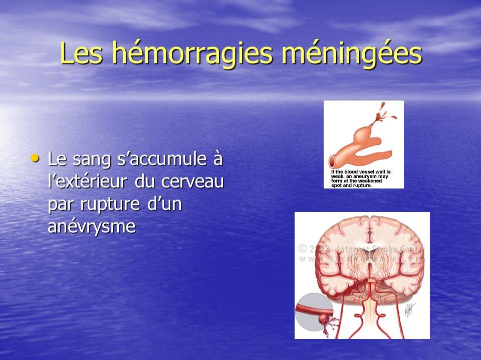 Les hémorragies méningées Le sang saccumule à lextérieur du cerveau par rupture dun anévrysme Le sang saccumule à lextérieur du cerveau par rupture du
