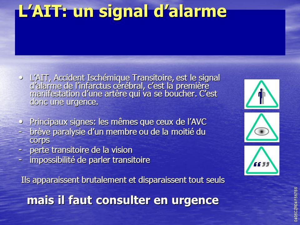 LAIT: un signal dalarme LAIT: un signal dalarme LAIT, Accident Ischémique Transitoire, est le signal dalarme de linfarctus cérébral, cest la première