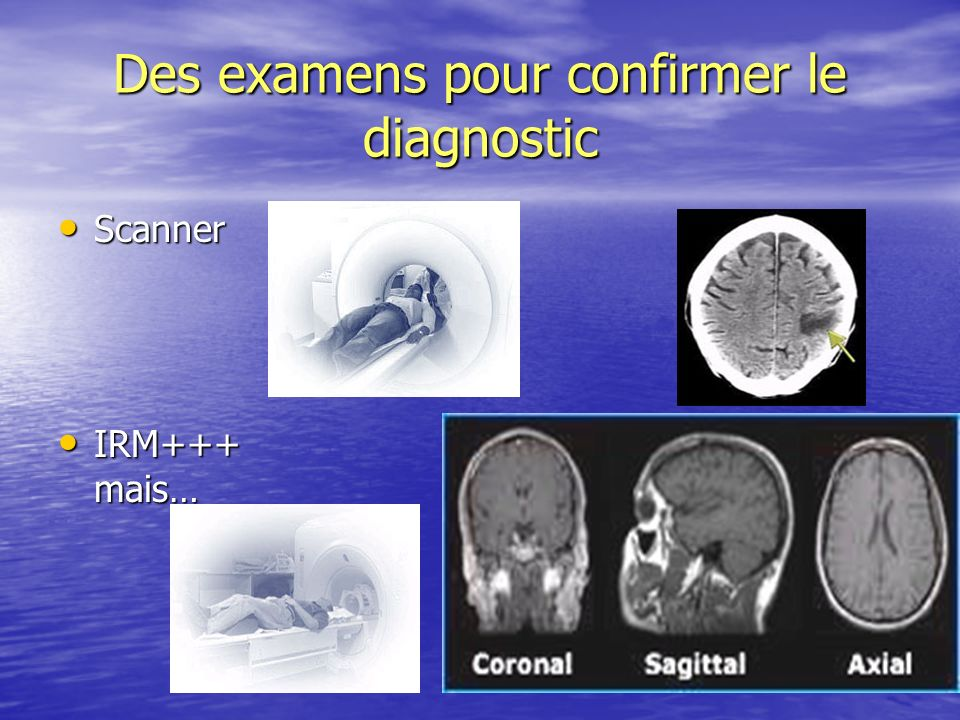 Des examens pour confirmer le diagnostic Scanner Scanner IRM+++ mais… IRM+++ mais…