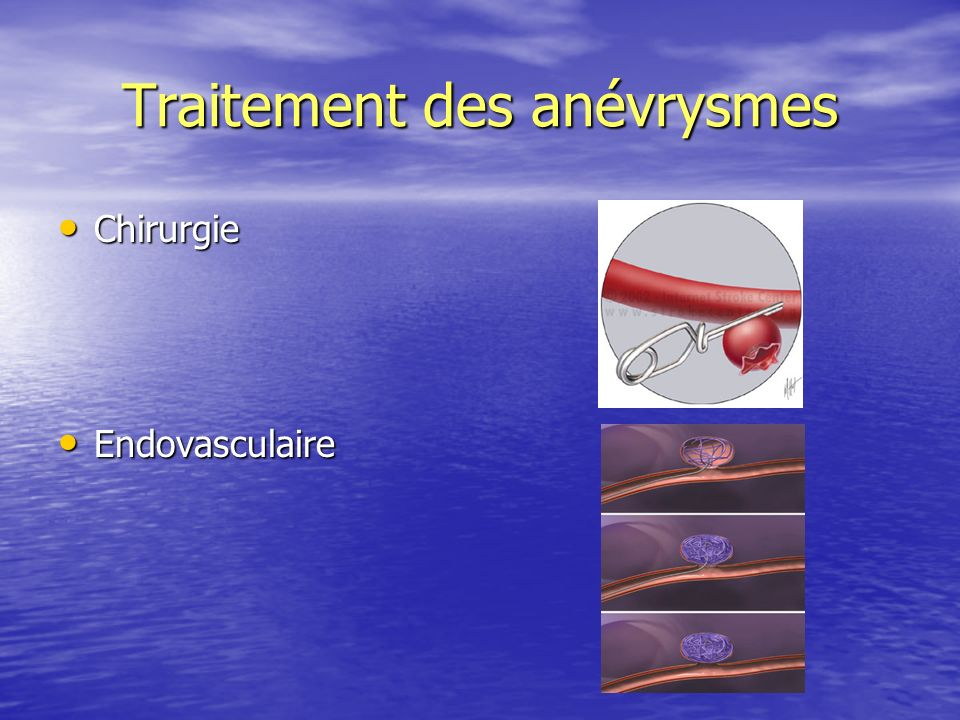 Traitement des anévrysmes Chirurgie Chirurgie Endovasculaire Endovasculaire