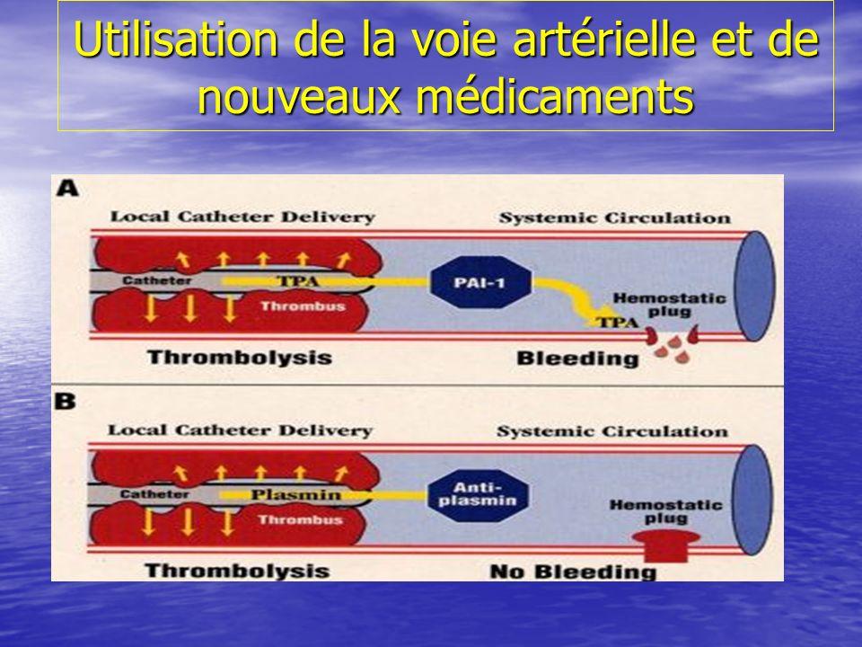 Utilisation de la voie artérielle et de nouveaux médicaments