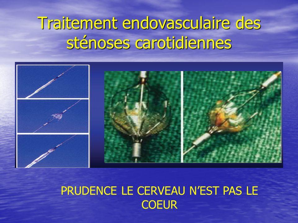 Traitement endovasculaire des sténoses carotidiennes PRUDENCE LE CERVEAU NEST PAS LE COEUR