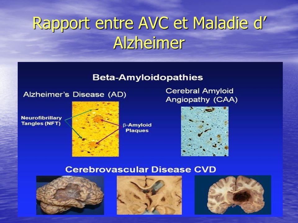 Rapport entre AVC et Maladie d Alzheimer