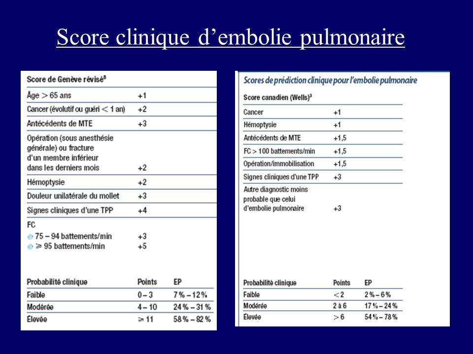 Score clinique dembolie pulmonaire