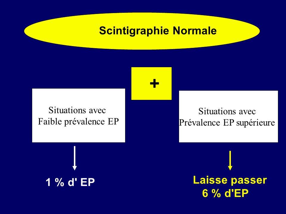 Scintigraphie Normale + Situations avec Faible prévalence EP Situations avec Prévalence EP supérieure 1 % d' EP Laisse passer 6 % d'EP