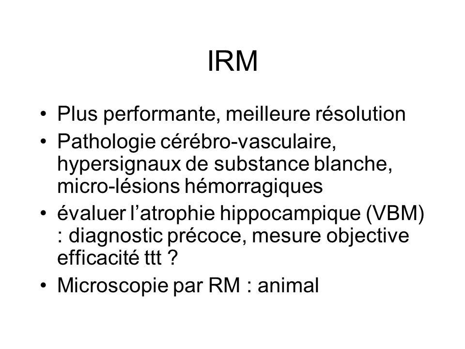 IRM Plus performante, meilleure résolution Pathologie cérébro-vasculaire, hypersignaux de substance blanche, micro-lésions hémorragiques évaluer latro