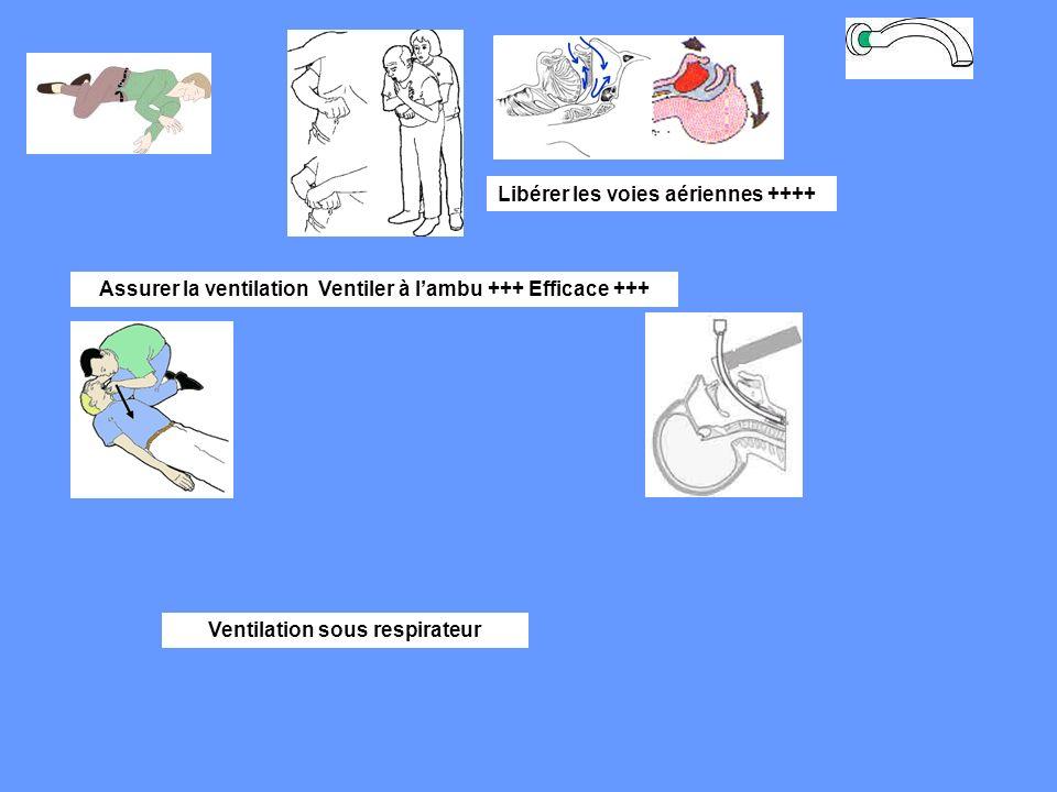 Libérer les voies aériennes ++++ Assurer la ventilation Ventiler à lambu +++ Efficace +++ Ventilation sous respirateur