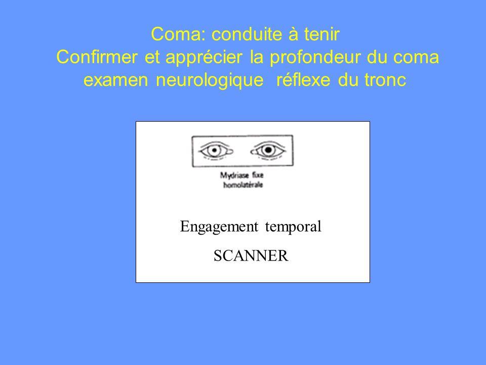 Coma: conduite à tenir Confirmer et apprécier la profondeur du coma examen neurologique réflexe du tronc Engagement temporal SCANNER